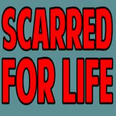Scarred-for-life-1563005055